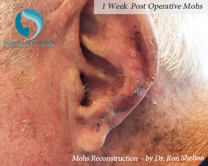 Mohs reconstruction New York - Post Operative 1 week
