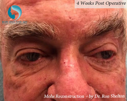 Mohs reconstruction New York - Post Mohs results after 4 weeks by Dr.Ron Shelton of NYC