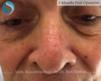 Mohs reconstruction New York - Post Mohs results on the nose after 3 months by Dr.Ron Shelton of NYC