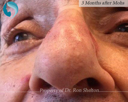 Mohs reconstruction New York - Post Mohs results on the nose after 1 year by Dr.Ron Shelton of NYC