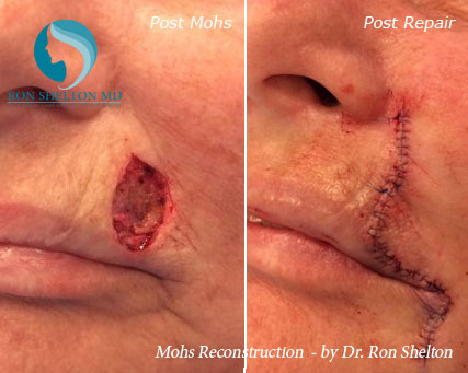 Mohs reconstruction New York - Before Case 12