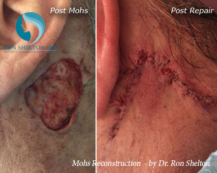 Mohs reconstruction New York - Before Case 15
