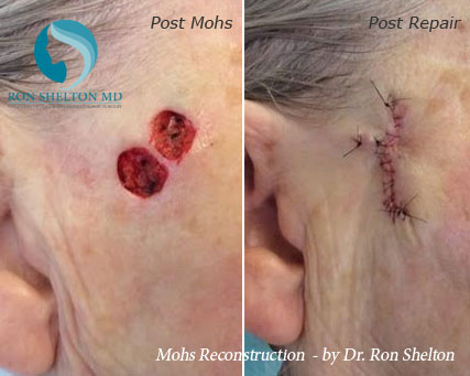 Mohs reconstruction New York - Before Case 17