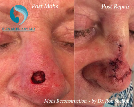 Mohs reconstruction New York - Before Case 2