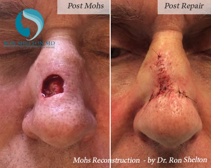 Mohs reconstruction New York - 3 weeks post mohs