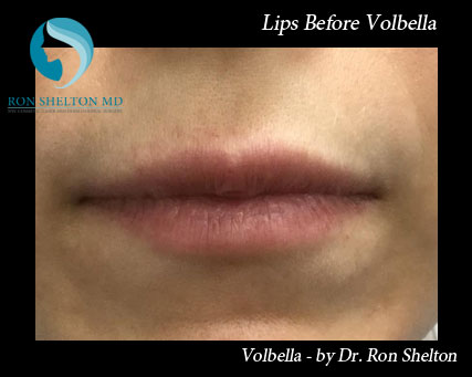 Dermal Fillers NYC - Volbella for sexy lips