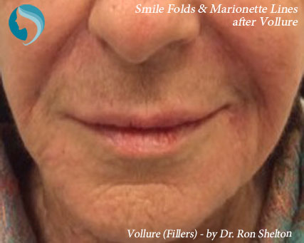 Dermal Fillers NYC - Post Operative Vollure to smile folds and  marionette lines