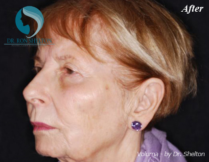 Voluma Fillers NYC - After Case 2