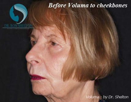 Voluma Fillers NYC - Before Case 2