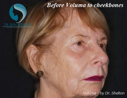 Voluma Fillers NYC - Before Case 3