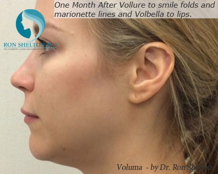 Voluma Fillers NYC - 12 Days After Volume Correction