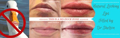 Juvederm no duck lips