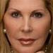 Dermatology News New York City - 6 Myths About Wrinkles Debunked