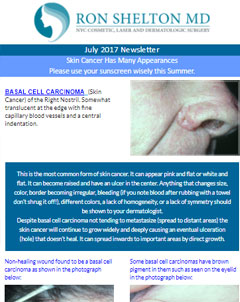 Skin Care and Dermatology News NYC  - July 2017 Newsletter