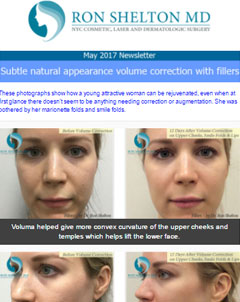 Skin Care and Dermatology News NYC  - March 2017 Newsletter