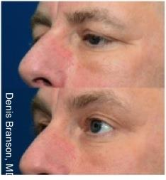 Skin Tightening with ThermiSmooth NYC - Before After Case 3