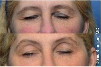 Skin Tightening with ThermiSmooth NYC - Before After Case 2