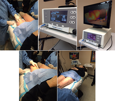 ThermiTight NYC - Dr. Shelton was an attendee at a ThermiTight live procedure in New Jersey