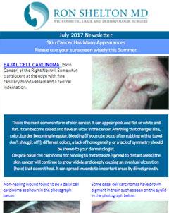 Ron Shelton MD Newsletter on Skin Cancer