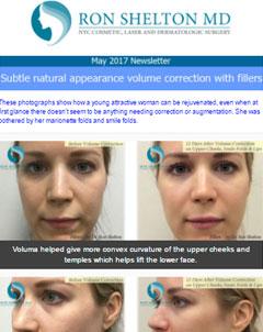 May 2017 - Voluma Correction