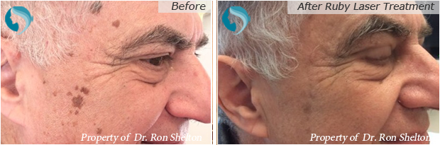 Brown Spots NYC| Age spot removal NYC by Ron Shelton MD