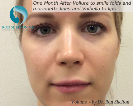 12 Days After Voluma to Upper cheeks, Vollure to smile folds and marionette lines and Volbella to lips