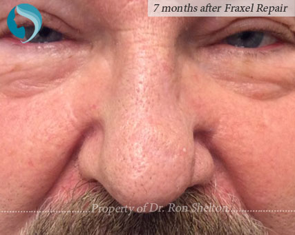 7 months after Fractional Repair (CO2) laser resurfacing of Mohs scar