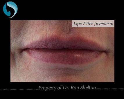Lips after Juvederm
