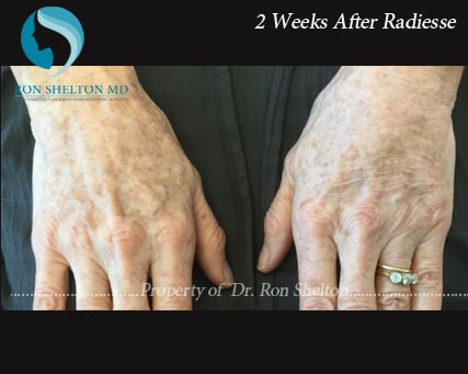 Hand rejuvenation by Radiesse After 2 Weeks