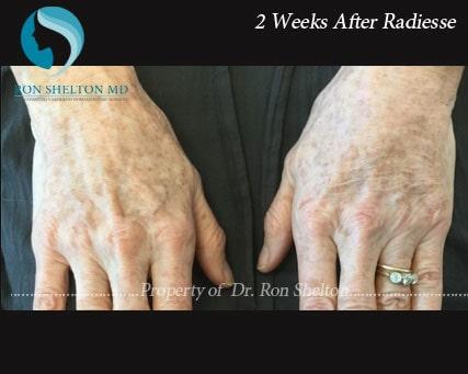 Hand rejuvenation by Radiesse After 2 Weeks