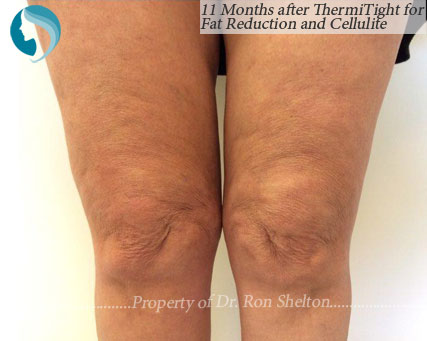 Subtle improvement above the knee for cellulite and fat reduction on knee 11 months after ThermiTight