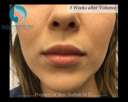3 Weeks After Voluma on Upper Cheeks