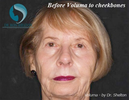 Before Voluma to Cheekbones