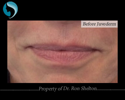 Duck Lips Before Juvederm
