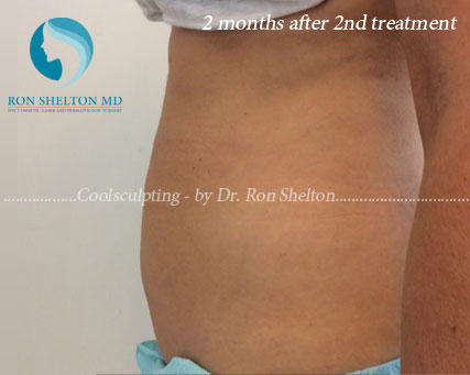 2 Months After 2nd Coolsculpting Treatment