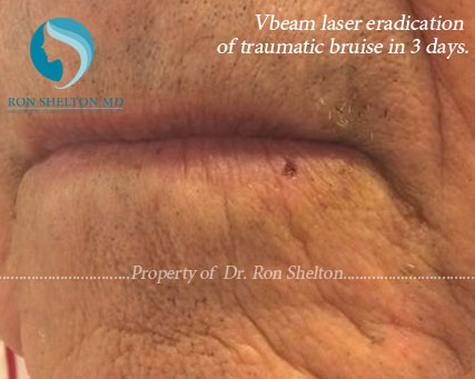 Vbeam laser eradication of traumatic bruise in three days
