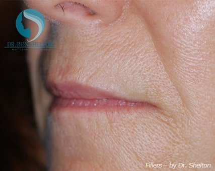 Lip lines and smile folds before Juvederm
