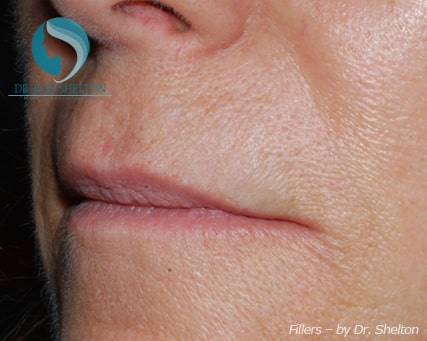 Lip lines and smile folds after Juvederm