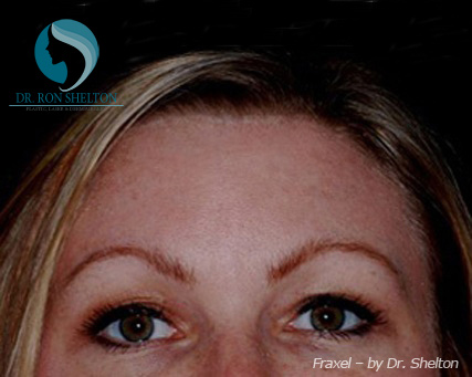 After Fraxel treatment for Melasma