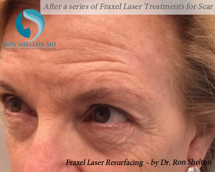 After a series of Fraxel Laser Treatments