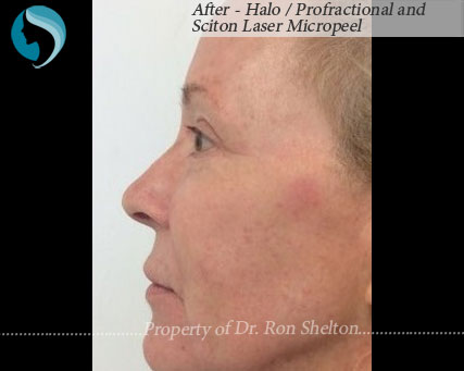 After - Halo / Profractional and Sciton Laser Micropeel