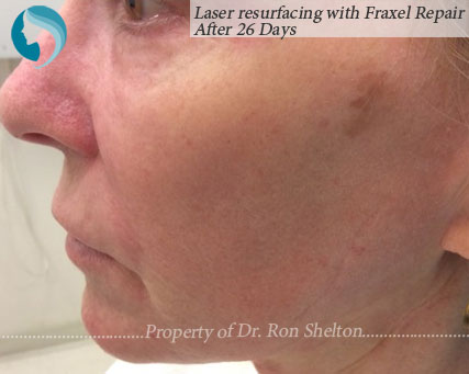 26 Days after Laser resurfacing with Fraxel Repair, CO2