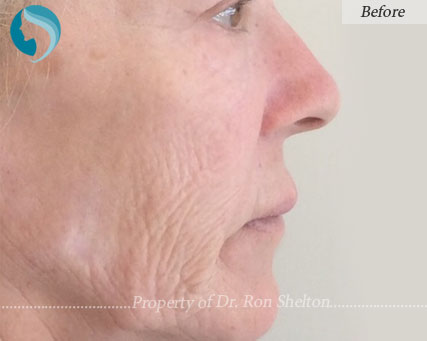 Fraxel Repair Before and After photos by Dr Ron Shelton in NYC