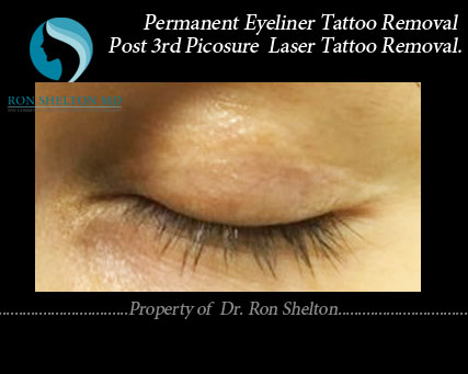 Completely resolved permanent eyeliner tattoo