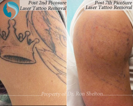 After 2nd and 7th PicoSure Laser Tattoo Removal