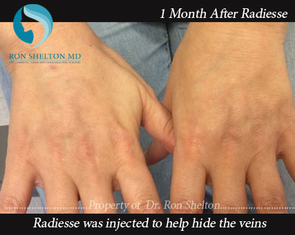 1 Month after Radiesse Treatment