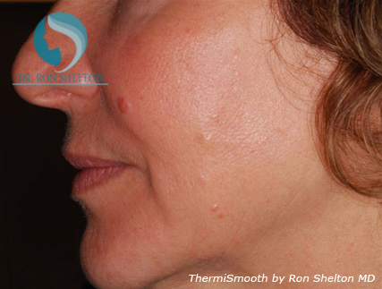 One Month After two ThermiSmooth Treatments