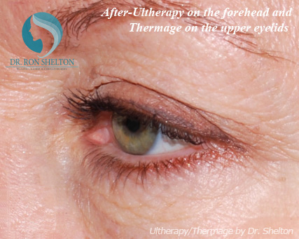 After-Ultherapy on the Forehead and Thermage on the Upper Lids