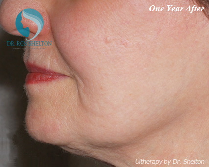 One Year After Ultherapy