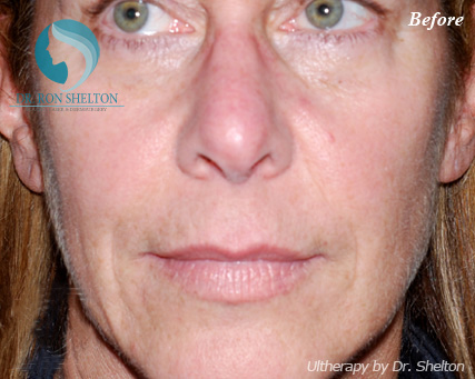 Before Ultherapy